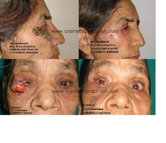 Eyelid Reconstruction Blepharoplasty, Delhi, India